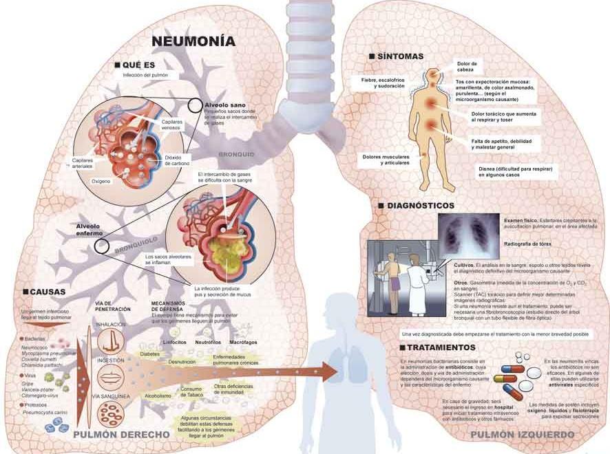 091202-neumonia